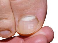 Грибок ногтей — основные симптомы, методы лечения и особенности заболевания (115 фото и видео)