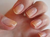 Ногтевая пластина — советы мастеров по выравниваю и восстановлению ногтей в домашних условиях (видео + 85 фото)