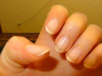 Слоятся ногти — причины слоящихся ногтей. Что делать, чтобы ногти не слоились? Уход за ногтями, советы для тех, у кого сильно слоятся ногти