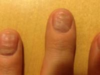 Вмятины на ногтях — причины появления, способы профилактики и исправления а также как можно скрыть вмятины смотрите на фото и видео!