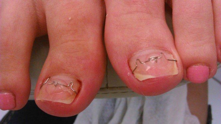 Врощенный ноготь на ноге лечение