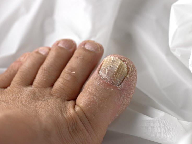 Ногти ног болезни в картинках