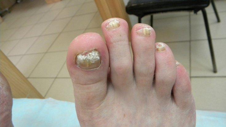 Что такое грибок ногтей на ногах, чем лечить, фото грибка ног