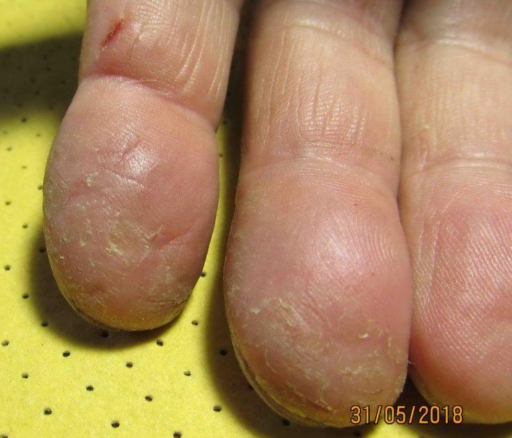 Трескаются руки до крови. Лечение сухой кожи народными, аптечными, косметическими средствами в домашних условиях. Диета