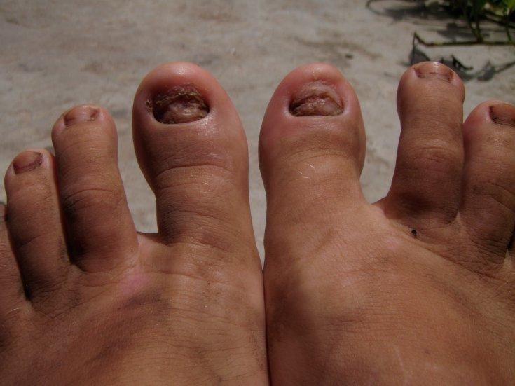 фото нога без ногтей сдача аренду