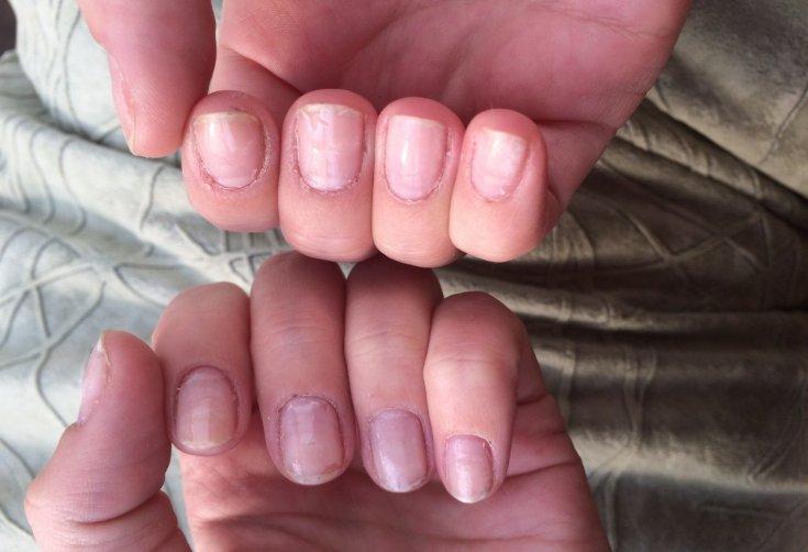 Как восстановить ногти после наращивания быстро?